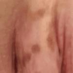 коричневые пятна на половых губах фото