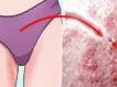 Прыщи на половых губах: фото, причины, лечение