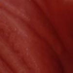 прыщики на половых губах фото
