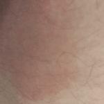 грибок в зоне паха у женщин фото