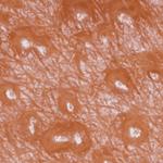 пузырьки на пол.губах фото