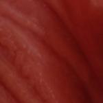 пузырьки на половых губах фото