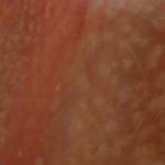 водяные пузырьки на половых губах фото