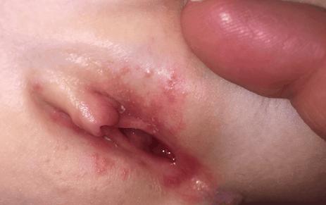 Мелкая белая сыпь на малых половых губах