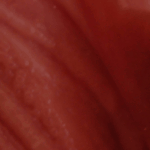 сыпь на половых губах фото
