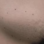твердая шишка на лобке у женщин фото