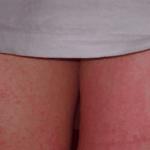 пятна в паху у женщин фото