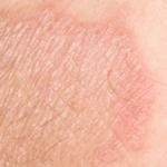 шелушение кожи в паху у женщин фото