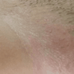 шелушится кожа в паху у женщин фото