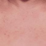 покраснела кожа в зоне декольте фото
