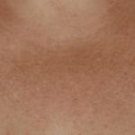 покраснение кожи в зоне декольте фото