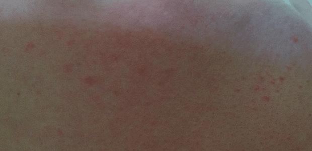 О чем может свидетельствовать покраснение кожи в зоне декольте?