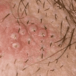 черные точки на половых губах у женщин фото