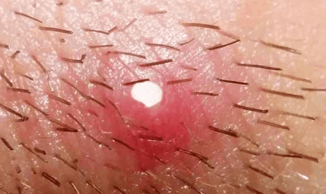 Нарывы на половых губах как вылечить