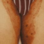 коричневые пятна на внутренней стороне бедра у женщин фото