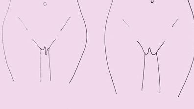 В каком возрасте у женщин обвисают половые губы?