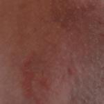 шелушение кожи на лобке у женщин