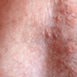 шелушение на лобке у женщин фото