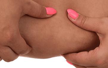 Шишка на внутренней стороне бедра у женщин – повод для беспокойства или обычное явление?
