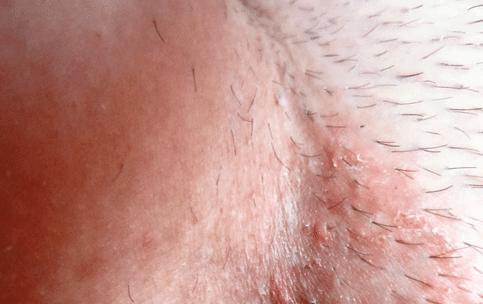 Что делать если на лобке появилась сыпь